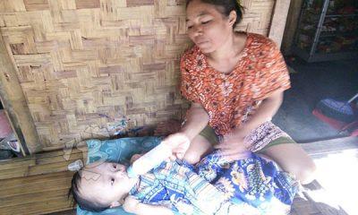 bayi hidrosefalus di Sumur Pandeglang
