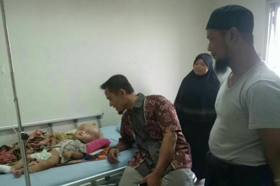 Bayi Hidrosefalus Dirawat di RSUD Banten