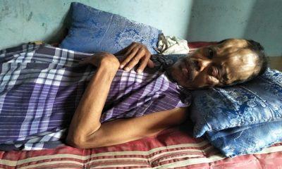 Pria di Solear Kabupaten Tangerang Idap Penyakit Aneh