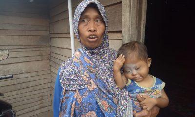 Keluarga Takut Biaya Mahal, Balita Gizi Buruk di Kota Serang Tak Ditangani Medis