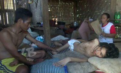 Juned penderita gagal ginjal di cikul hanya terbaring di rumah