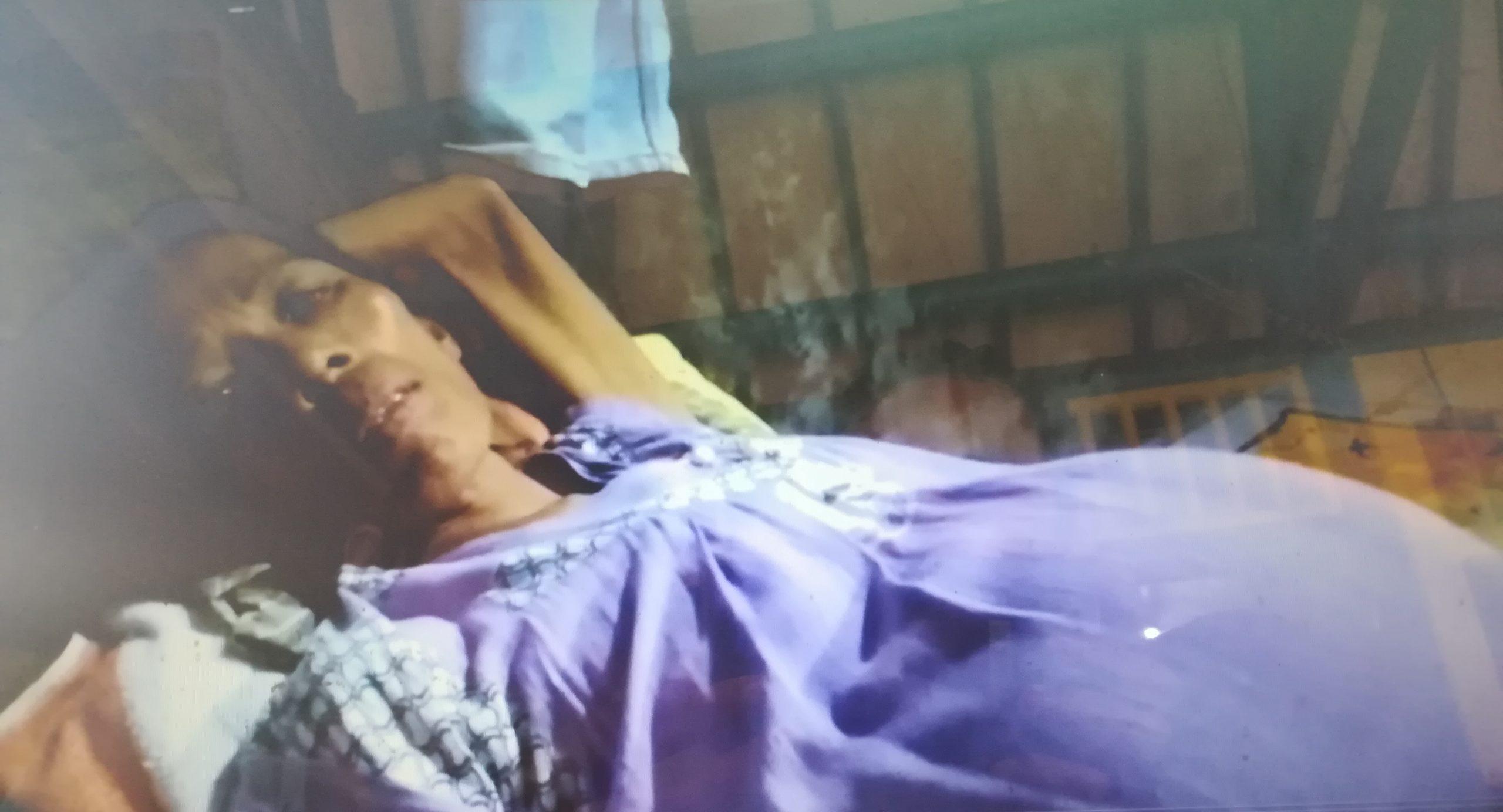 Tubuh Digerogoti Tumor, Emak-emak Miskin di Kabupaten Serang Hanya Dibiarkan Terbaring di Rumahnya